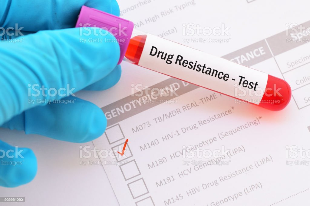 HIV drugs resistance test stock photo