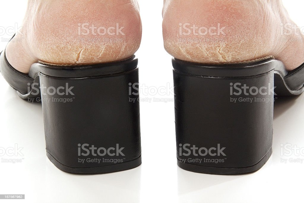 Dry and cracked soles of feet in shoes on white stock photo