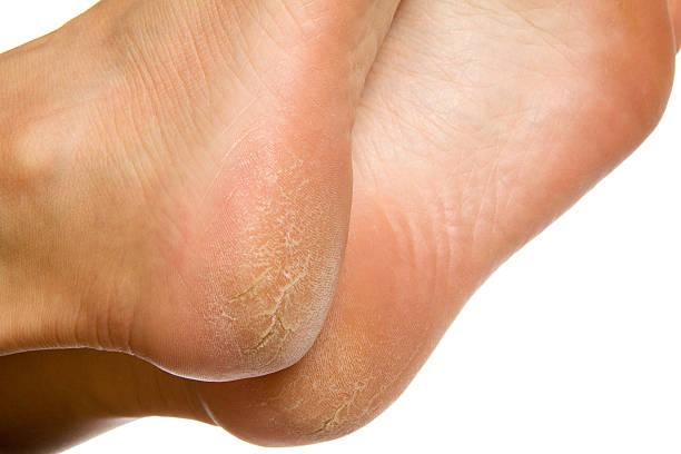 Trockene und rissige Fußsohlen auf weißem Hintergrund – Foto