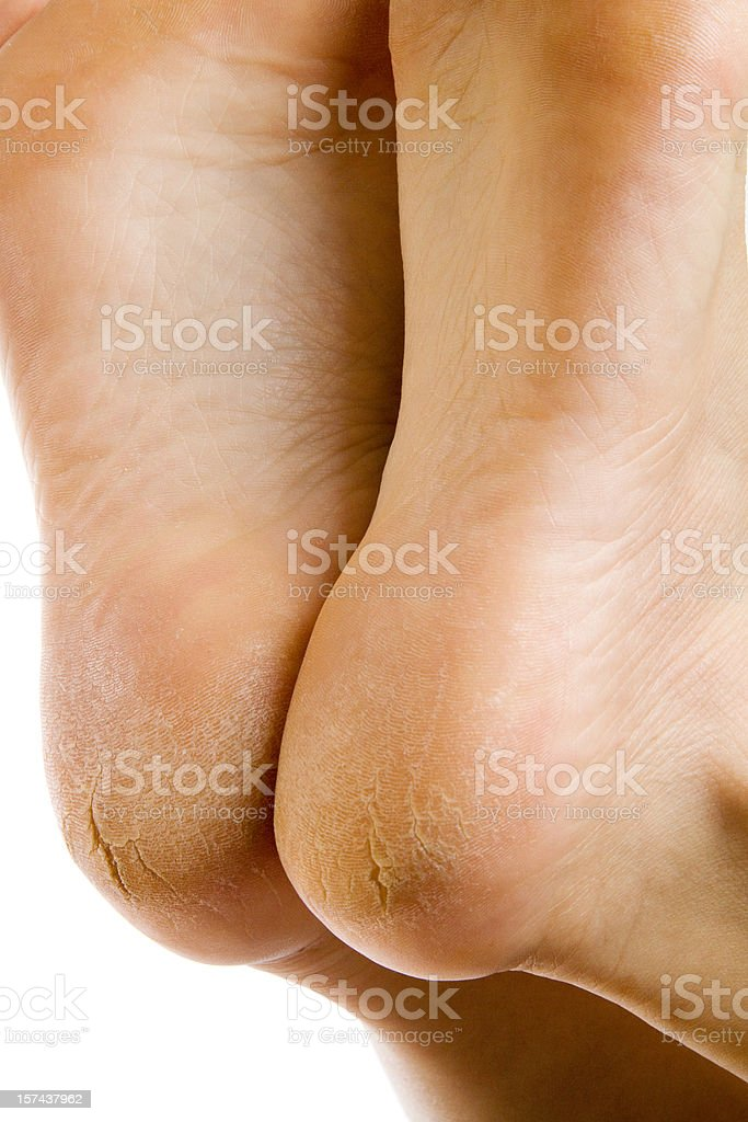 Dry and cracked soles of feet on white background royalty-free stock photo