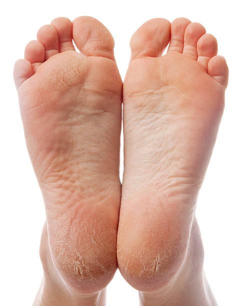 Dry and cracked soles of feet on white background  sole of foot stock pictures, royalty-free photos & images