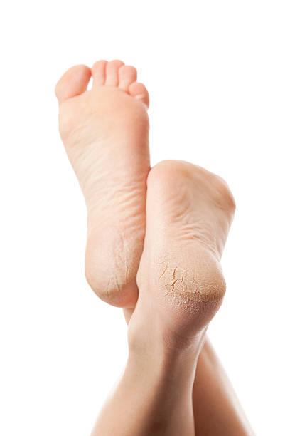 asciutto e incrinato le piante dei piedi su sfondo bianco - callo foto e immagini stock
