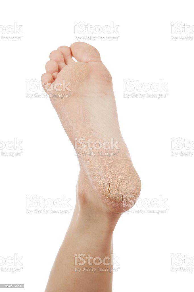Dry and cracked woman's heel on white background stock photo