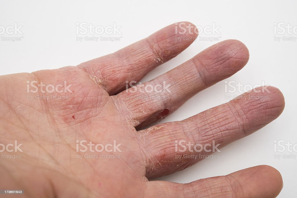 Dry Cracked Skin Condition, Eczema royalty-free stock photo