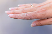 istock Dry cracked skin macro closeup of index finger of female young woman's hand showing eczema medical condition called dyshidrotic pompholyx or vesicular dyshidrosis 1185912357