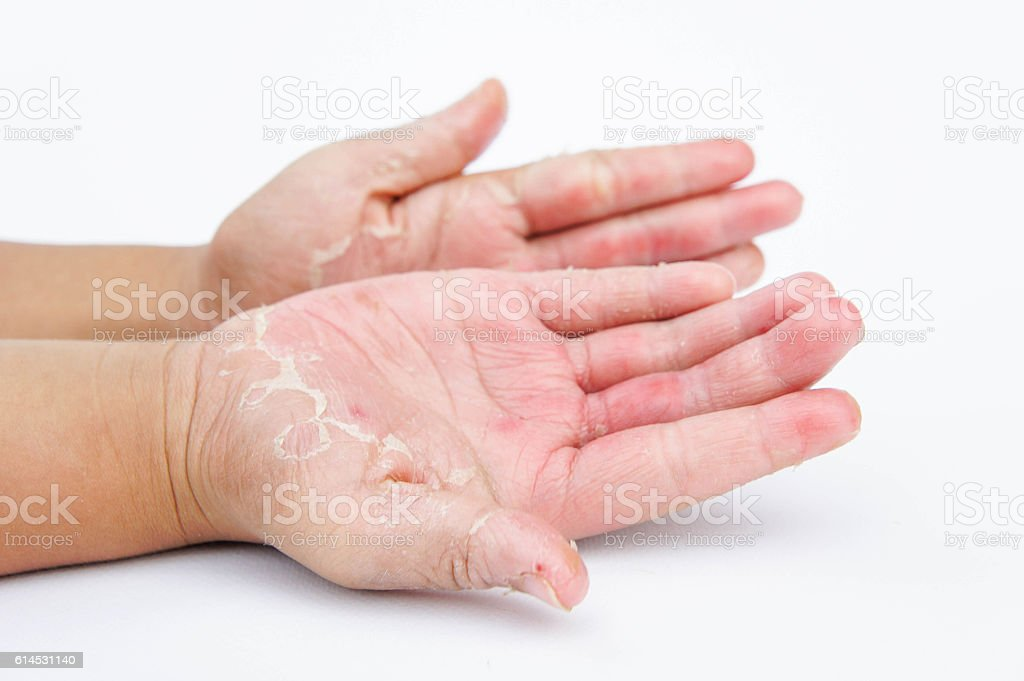 Dry hands, peel, Contact dermatitis, fungal infections, Skin inf stock photo