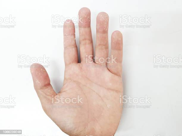 https www istockphoto com tr foto c4 9fraf kuru eller kontakt dermatit mantar enfeksiyonlar c4 b1 deri enfeksiyonlar c4 b1 maruz soyma gm1066239248 285128606