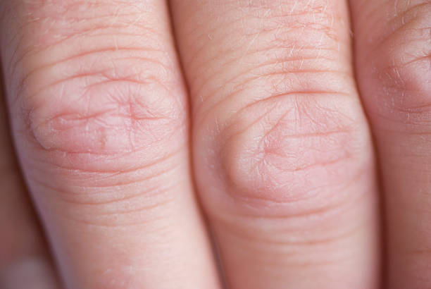 dry knuckles close-up macro, skin condition concept - knuckle stock photos and pictures