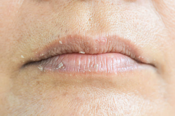 dry lips and peeling - detachment stock pictures, royalty-free photos & images