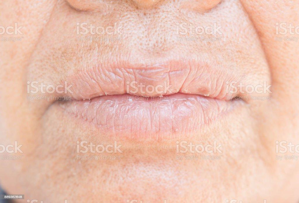 Peeling y labios secos - foto de stock
