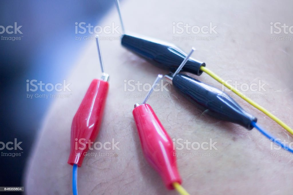 Dry needling electroacupunture needles used by acupunturist physiotherapist on patient in pain and injury acupunture with electrical pulse treatment. stock photo