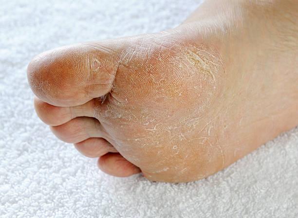Dry rough foot (XXXL) stock photo