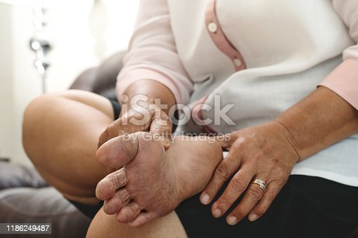 istock dry skin and cornea on senior woman foot 1186249487
