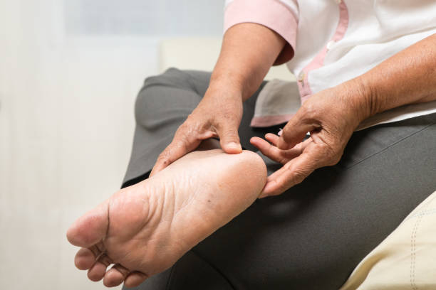 dry skin and cornea on senior woman foot stock photo