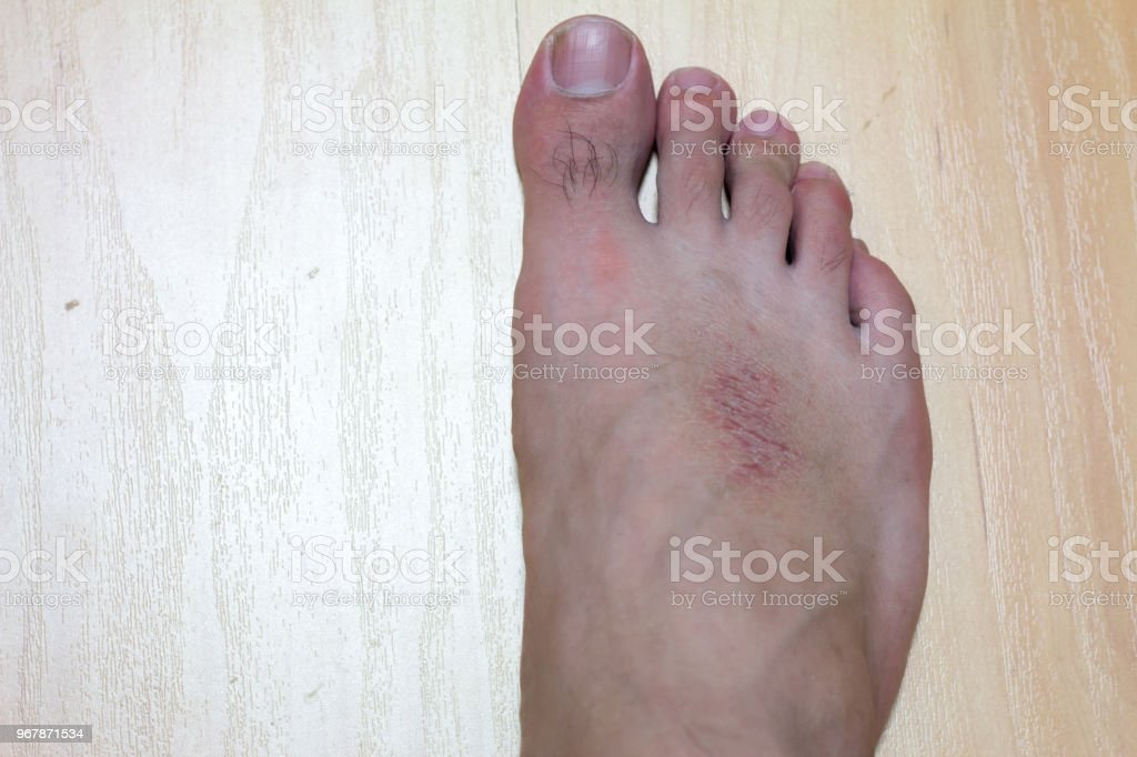 Dry Skin And Rash At Male Foot On Wood Background Stock Photo Download Image Now Istock