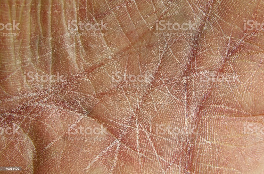 Dry Skin as shown on chapped hand-palm. stock photo
