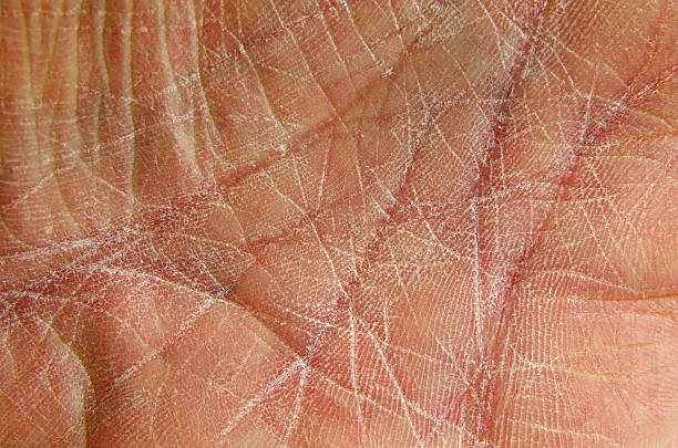 dry skin as shown on chapped hand-palm. - dry stock photos and pictures