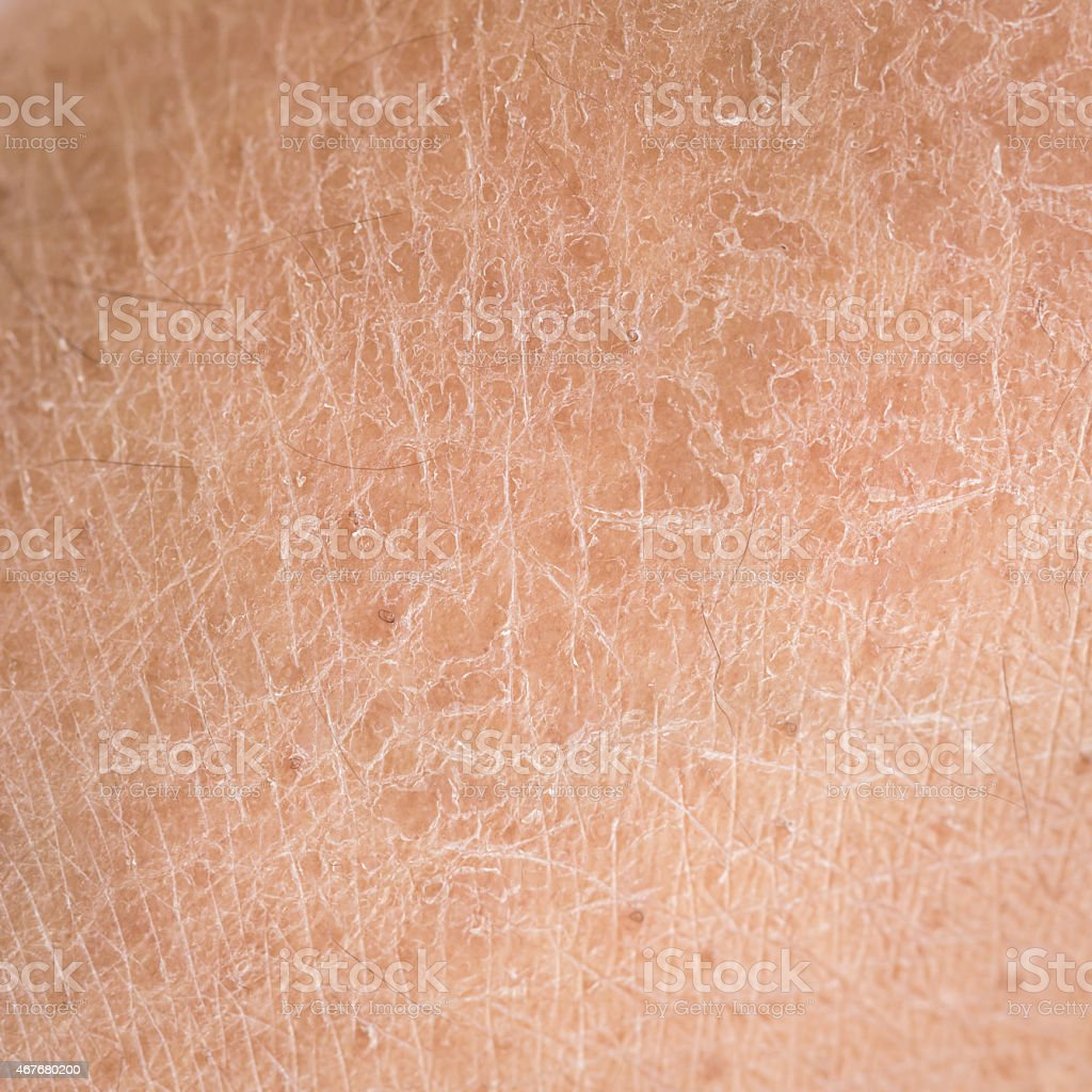 dry skin (ichthyosis) detail stock photo