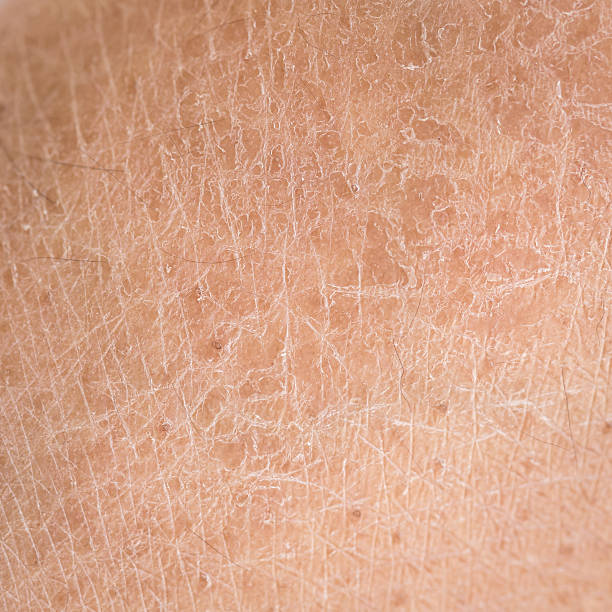 dry skin (ichthyosis) detail - dry stock photos and pictures