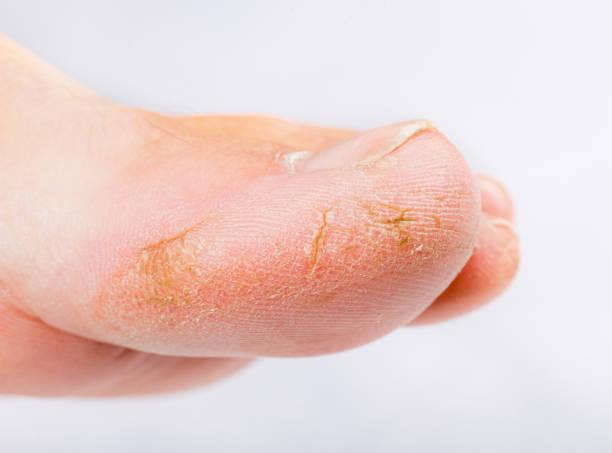 Dry skin on big toe stock photo