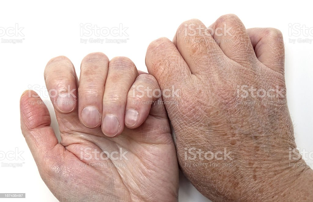 Dry skin on hands, back and front stock photo