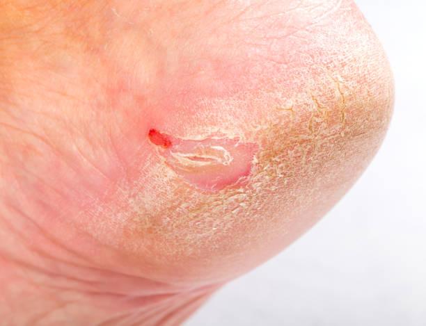 Dry skin on heel stock photo