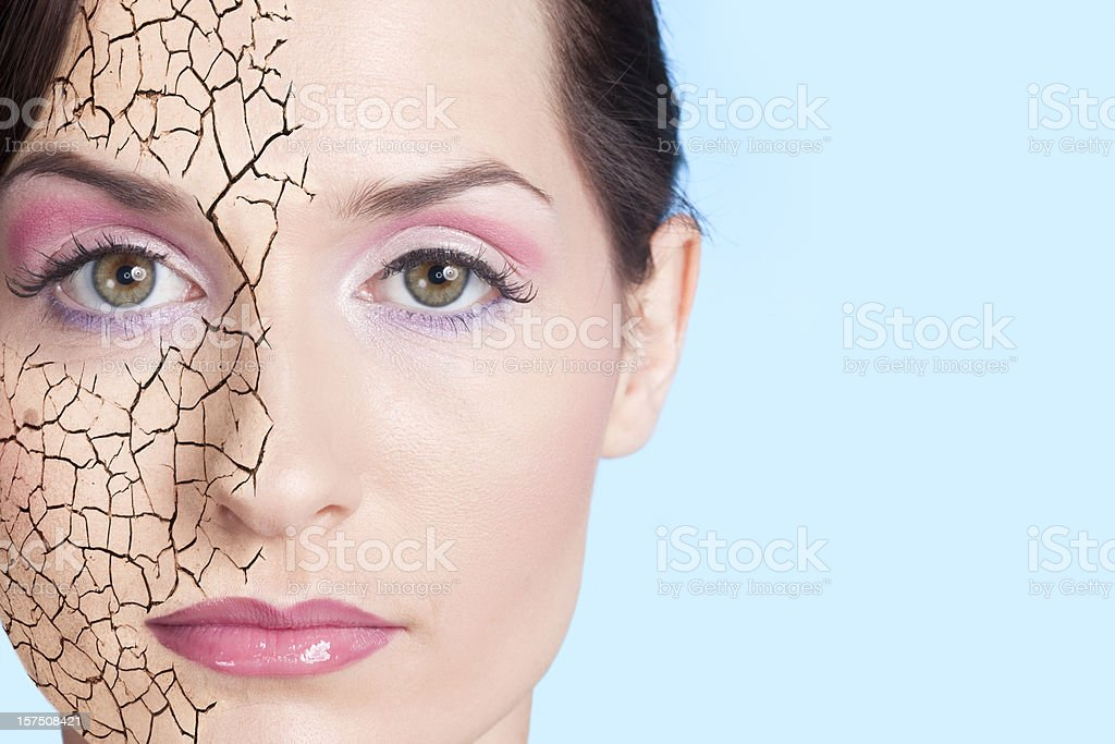 Dry skin stock photo