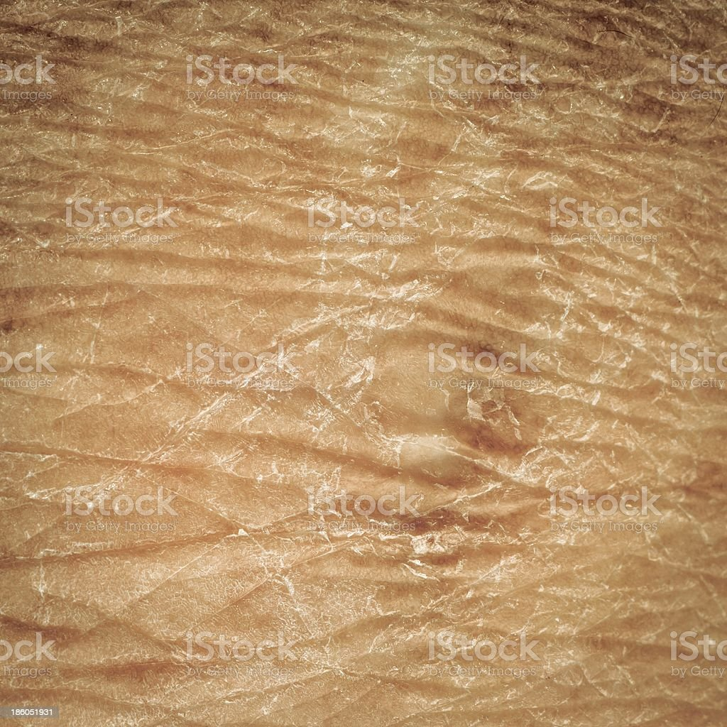 dry skin texture royalty-free stock photo