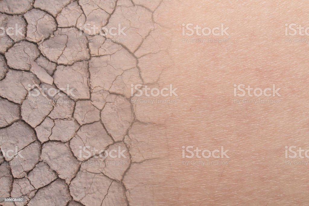 dry woman skin texture with dry soil stock photo