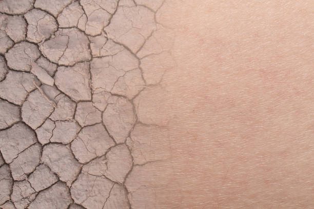 dry woman skin texture with dry soil - dry stock pictures, royalty-free photos & images