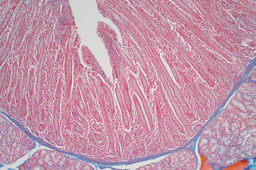 Duodenum Biopsy From The Pathology Of Small Intestine ...