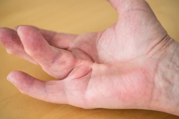 Der Dupuytren'schen Kontraktur der Ringfinger auf Frau palm – Foto