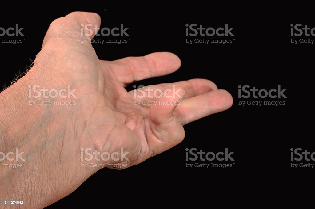 Dupuytren's Contracture stock photo