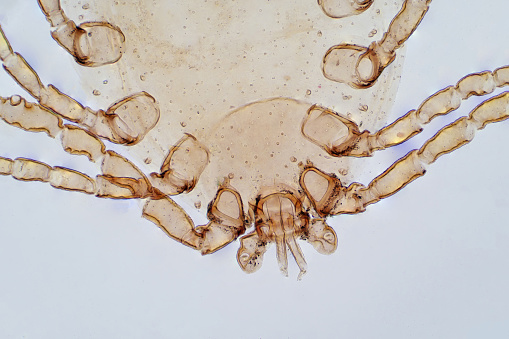 Dust Mite under the light microscope view.