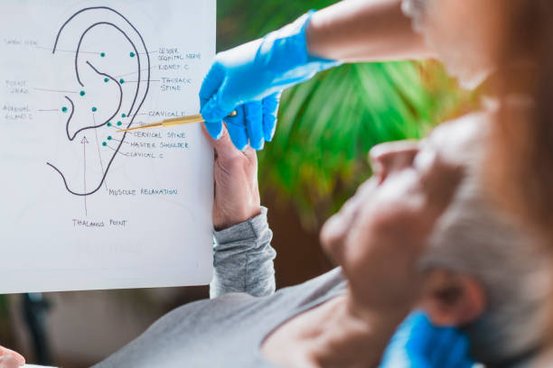 Ear Acupuncture Point Therapy stock photo