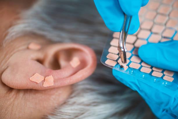 Ohr Akupunktur Punkttherapie – Foto