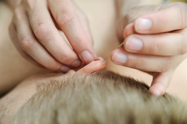 Ear acupuncture treatment. stock photo