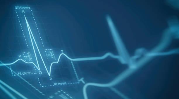 eart beats cardiograma - equipo médico fotografías e imágenes de stock