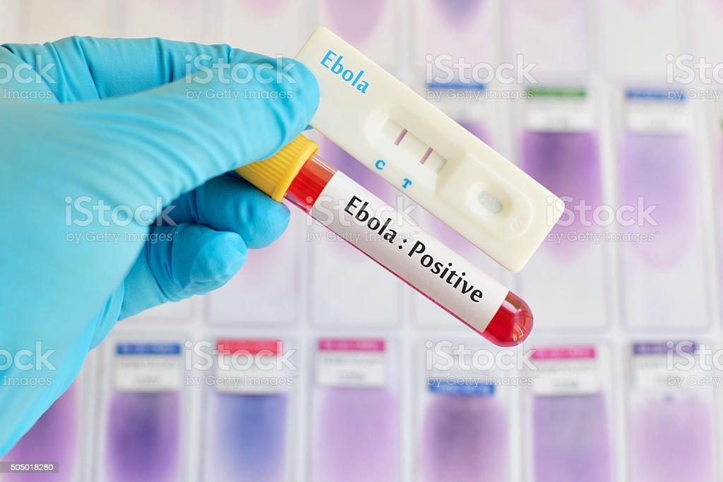 Ebola positive stock photo