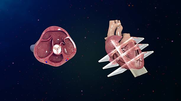 Echocardiogram An echocardiogram (also called an echo) is a type of ultrasound test that uses high-pitched sound waves that are sent through a device called a transducer. The device picks up echoes of the sound waves as they bounce off the different parts of your heart. cusp stock pictures, royalty-free photos & images