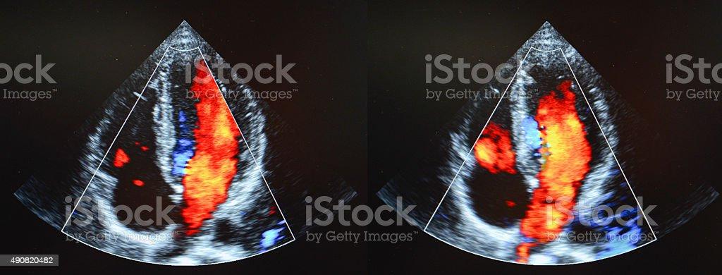 echocardiography stock photo