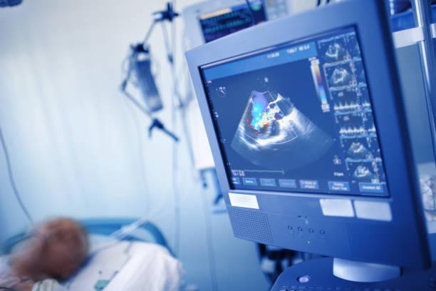EchoCG exam of comatose patient on the display in the ICU stock photo