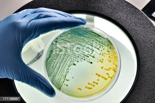 E. coli bacteria growing in laboratory dish inspected in a food laboratory