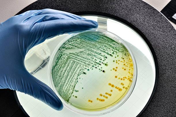 e.coli bacteria growing in dish - spoorelement stockfoto's en -beelden