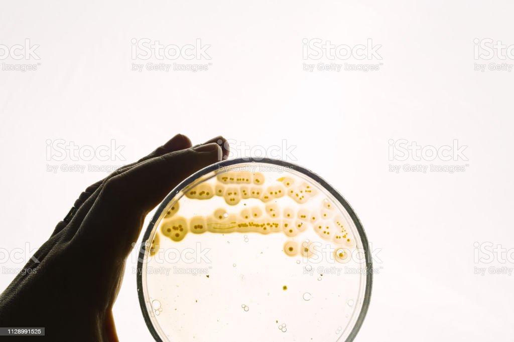 Escherichia coli-Bakterien in Petrischale – Foto