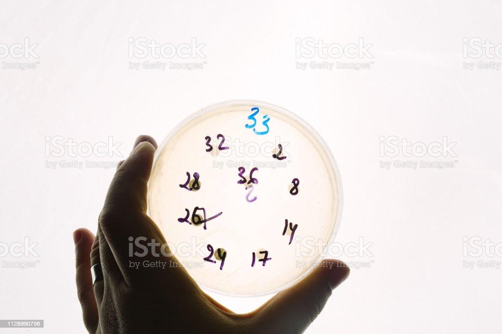 Escherichia coli-Bakterien, die Tests in Petrischale – Foto