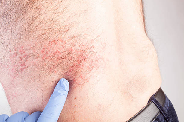 Eczema atopic dermatitis symptom skin texture. stock photo