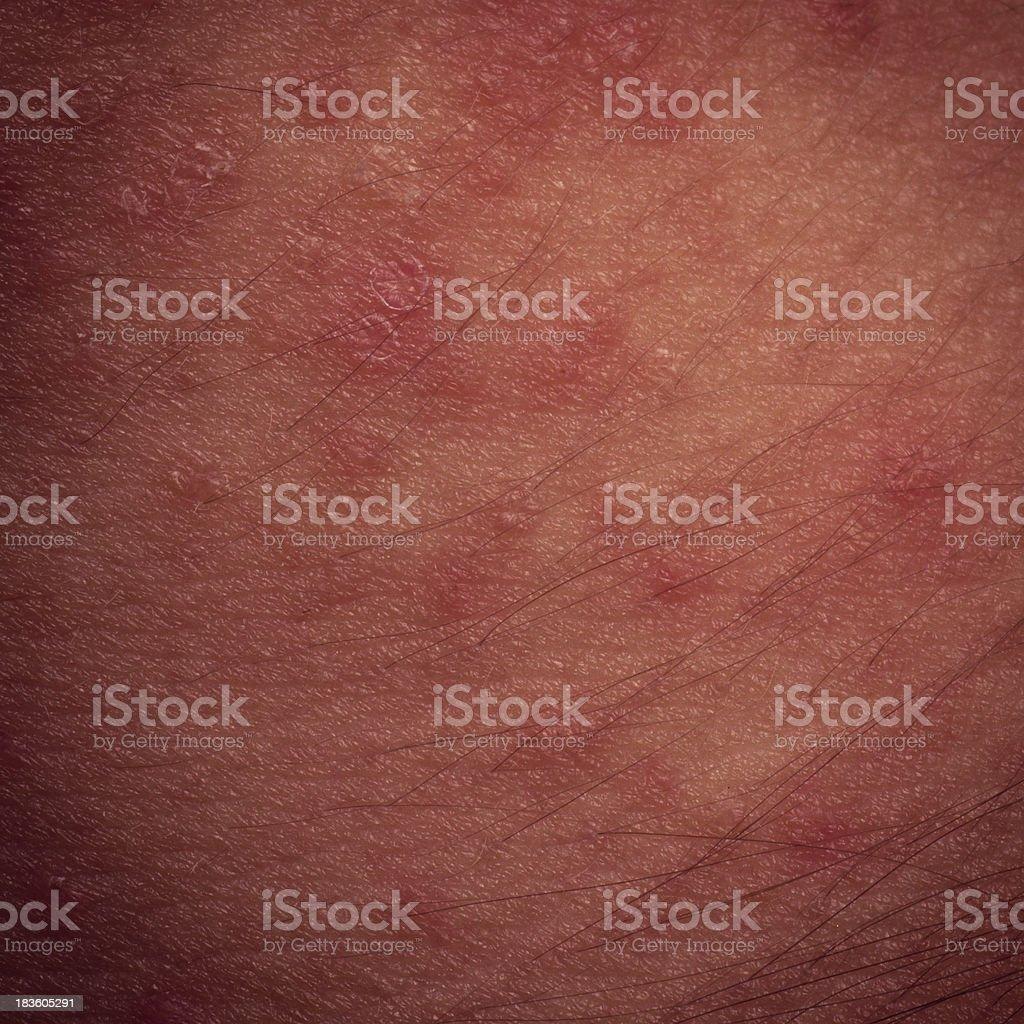 eczema atopic dermatitis symptom skin texture royalty-free stock photo