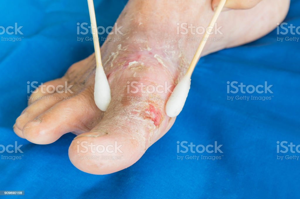 Eczema from diabetes  in old women and cotton swab wash stock photo