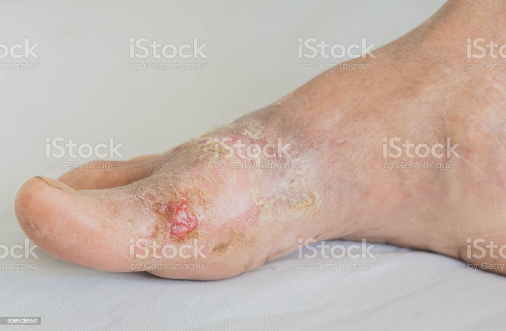 Eczema from diabetes  in old women stock photo